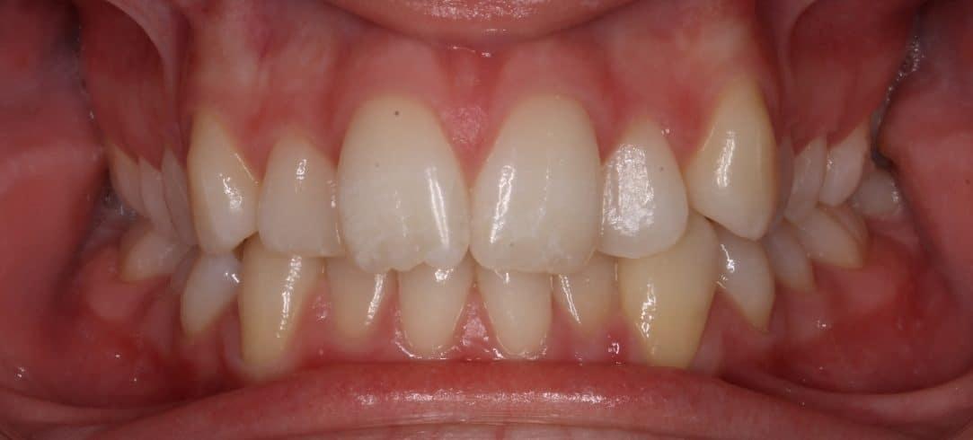 ABozik-Initial(02-15-2012)-Intraoral anterior