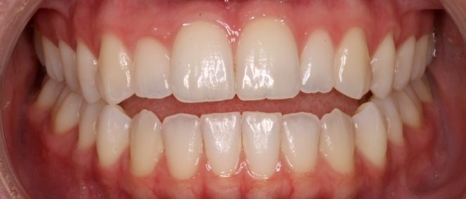 13-703-sf-initial-i09-03-2013-intraoral-anterior