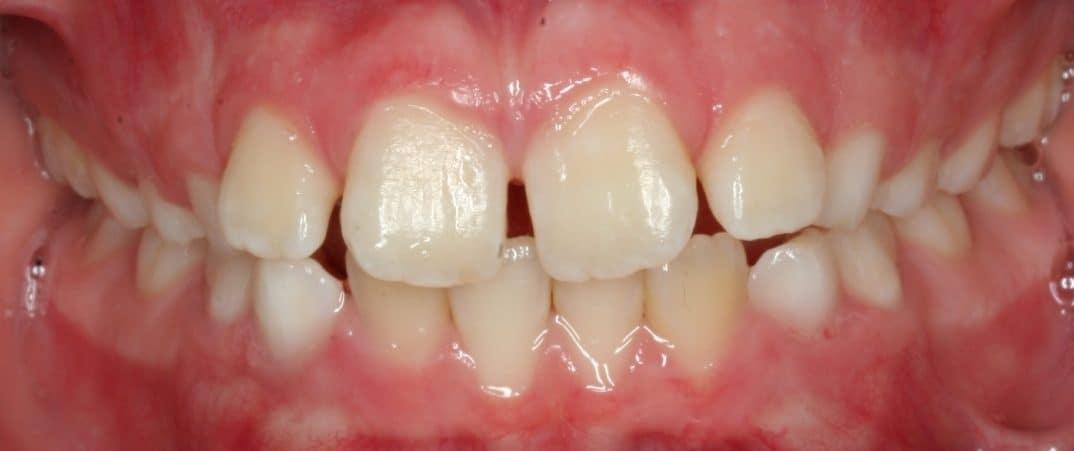 lharrison-initial09-07-2011-intraoral-anterior
