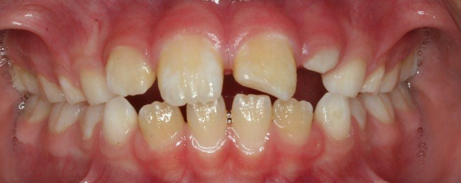 smaltese-initial01-26-2011-intraoral-anterior